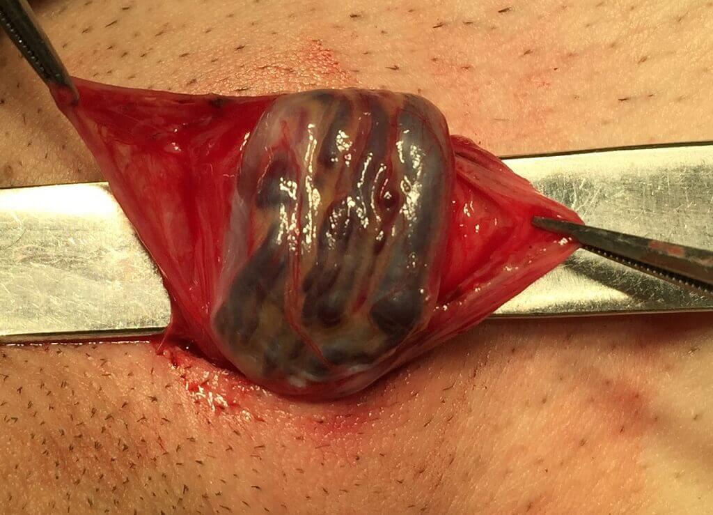 Операция Мармара при варикоцеле