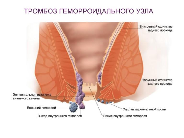 Геморрой тромбоз при беременности