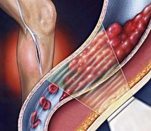 Как проявляется тромбоз глубоких вен?