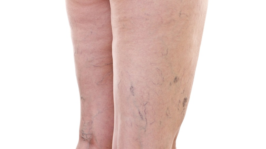 Почему пульсируют вены на ногах