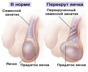 Симптомы перекрута яичка