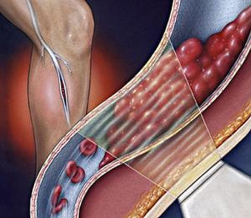 ожирение печени симптомы лечение отзывы