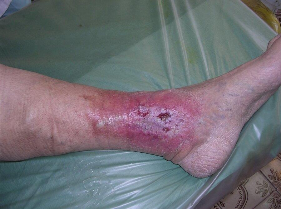 Тромбофлебит ног народное лечение