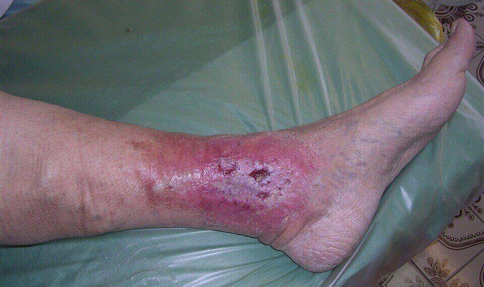 Развитие трофической язвы на ноге