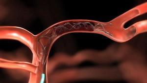 Причины возникновения тромба
