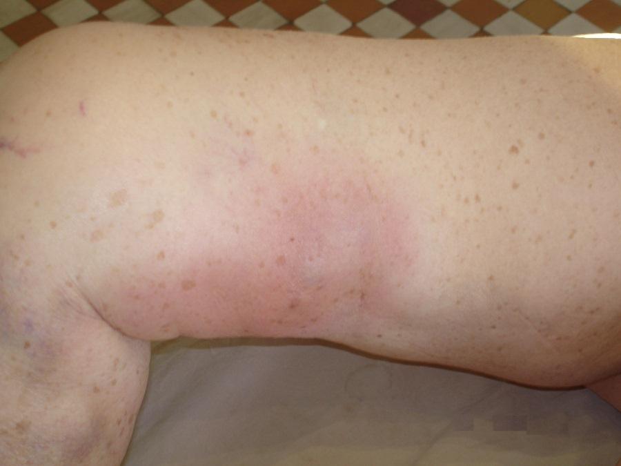 Боли при тромбофлебите нижних конечностей
