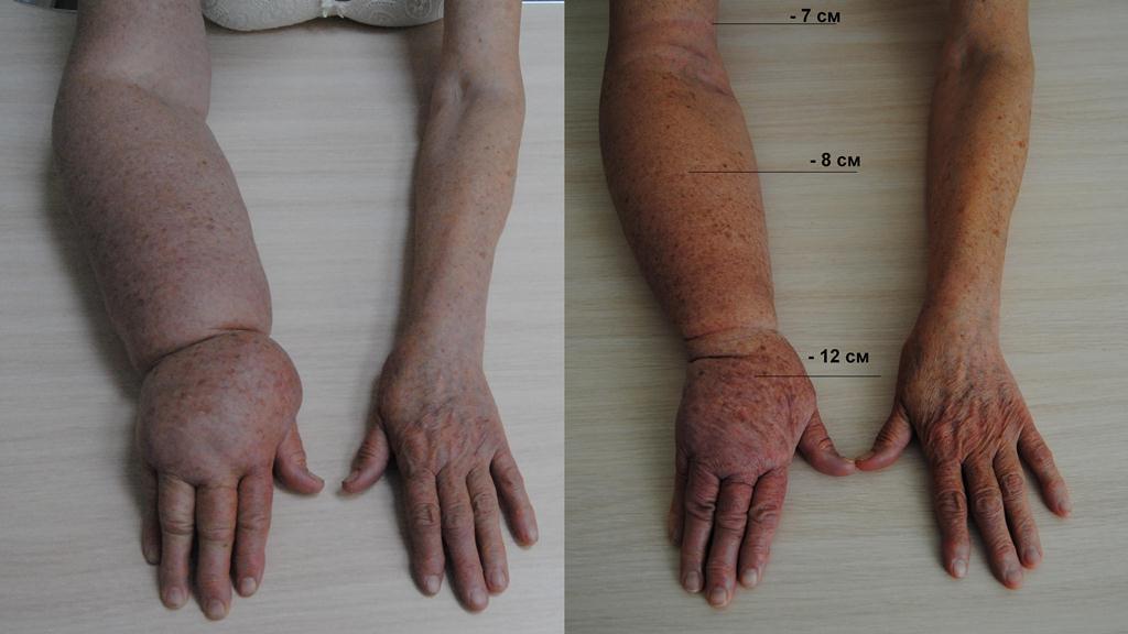 Лечение 2 стадии лимфостаза рук