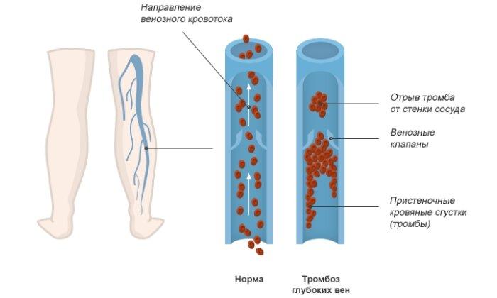 Острый тромбоз глубоких вен нижних конечностей - симптомы и лечение