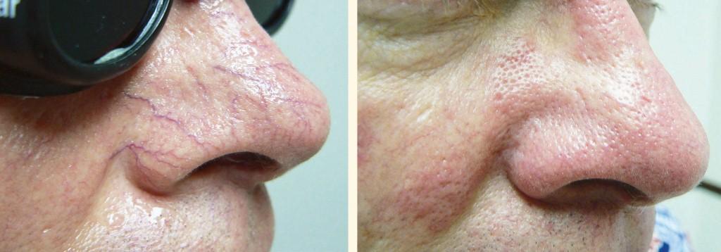 Результат удаления сосудистых звездочек на носу