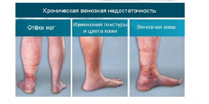 Трофические язвы при хроническом тромбофлебите