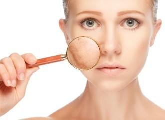 Купероз кожи — капилляры на лице