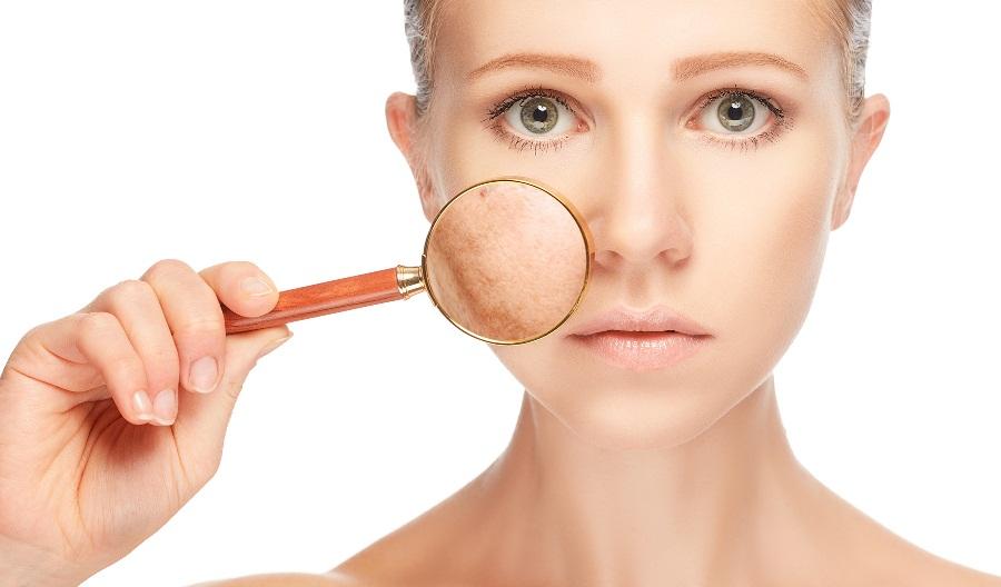 От чего возникает купероз на лице?