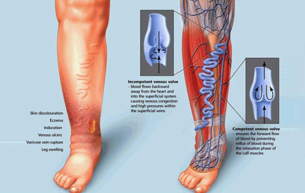Реабилитация после операции на венах