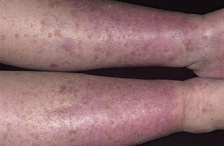 Осложнение ВРВ - варикозная экзема на ногах