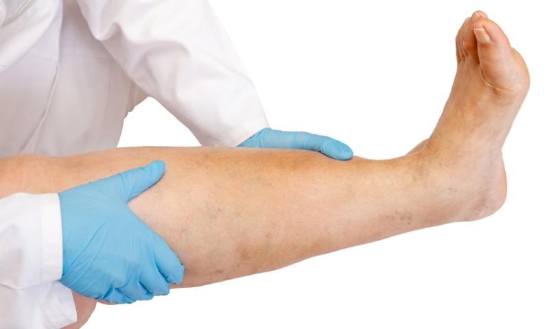 Обследование заболеваний нижних конечностей
