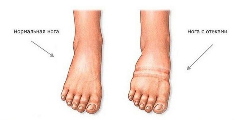 Что такое отек ног?