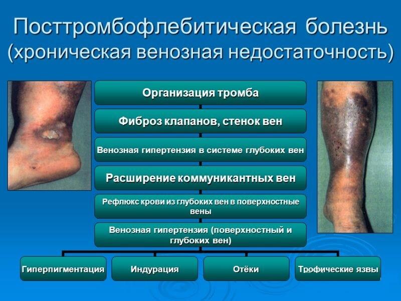 Как проходит посттромбофлебитическая болезнь?