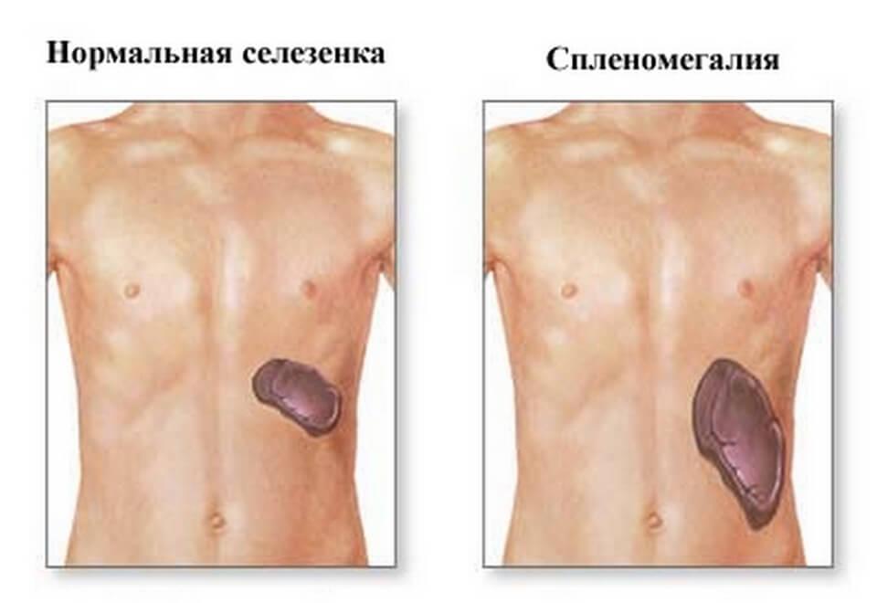 Симпотомы тромбоза глубоких вен