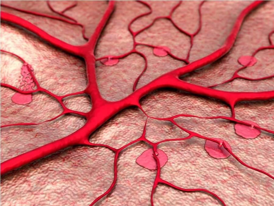 Лимфостаз - нарушение циркуляции лимфы в лимфатических сосудах