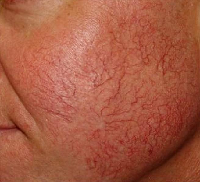 Последняя стадия купероза на лице