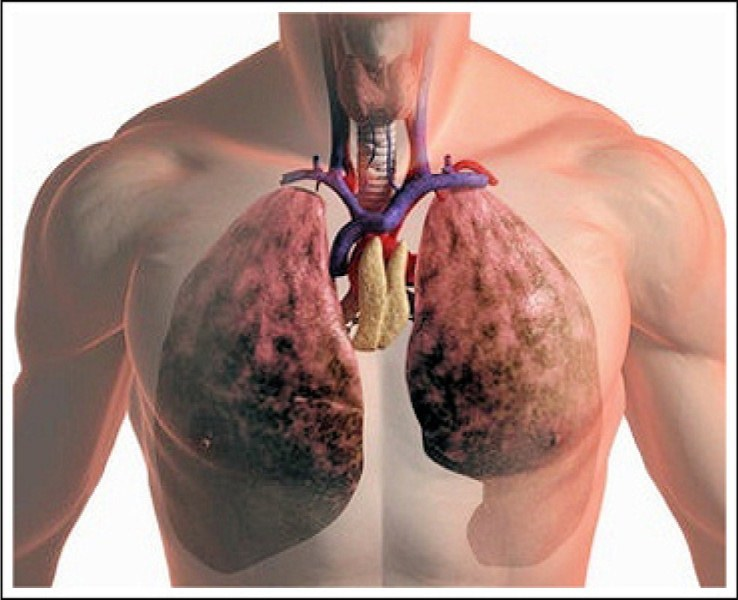 Легочная тромбоэмболия: симптомы, причины, лечение