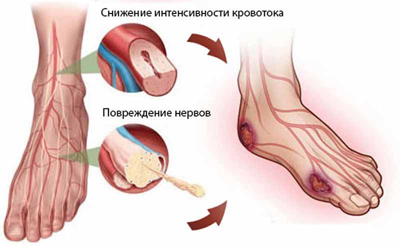 Осложнение тромбофлебита нижних конечностей