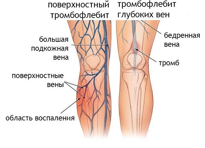 Тромбофлебит поверхностных и глубоких вен нижних конечностей