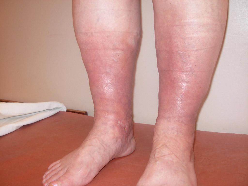 Воспалились вены на ногах болит что делать