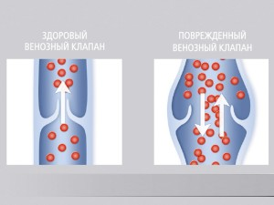 Причины возникновения варикоза малого таза