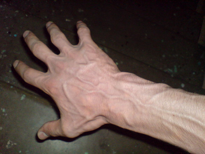 Профилактика тромбоза вен нижних конечностей