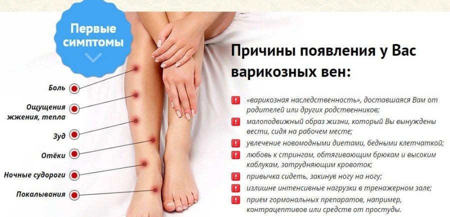 Факторы возникновения варикоза на ногах