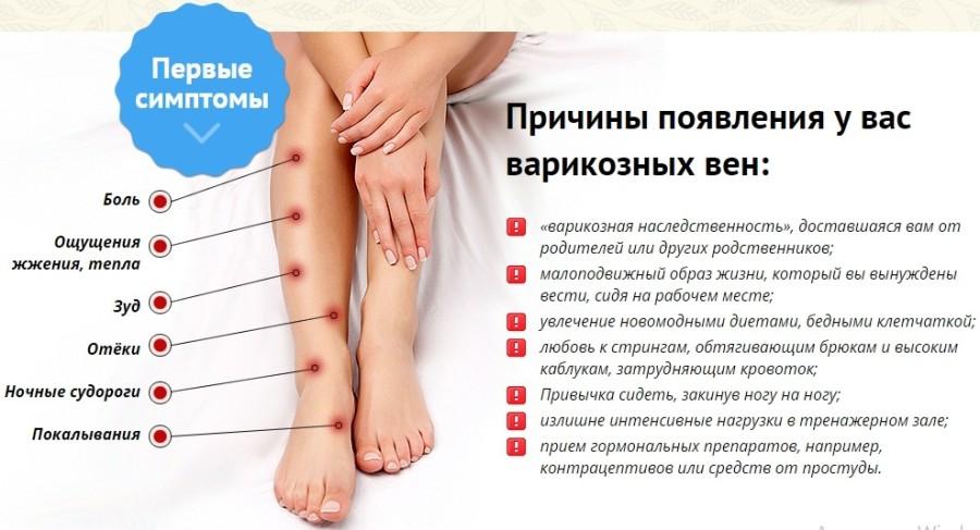 Гимнастика от варикоза на ногах
