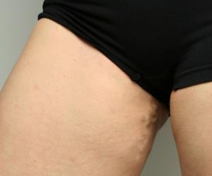 Симптомы варикоза малого таза у женщин