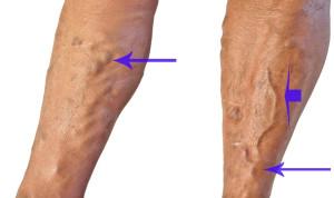 Повышение болевых симптотов и появления узелков на ногах