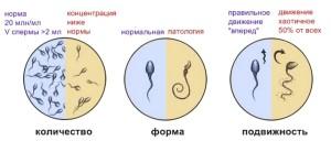 Что покажет спермограмма после операции