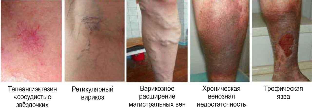 Трофические язвы на ногах - фото и стадии развития болезни