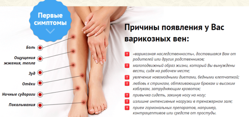 Как лечить варикоз на ноге у мужчин