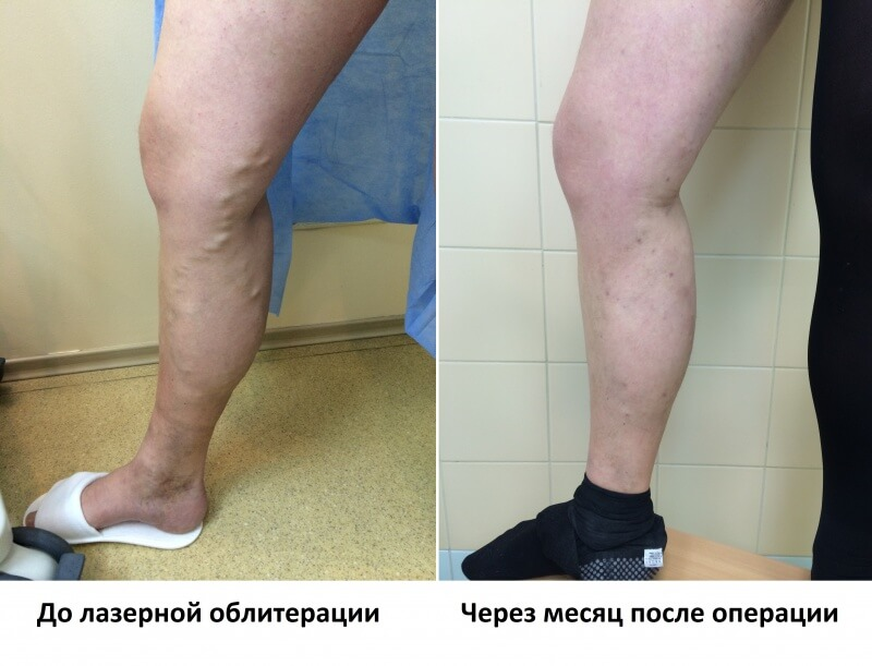 Удаление вен на ногах лазером - отзывы