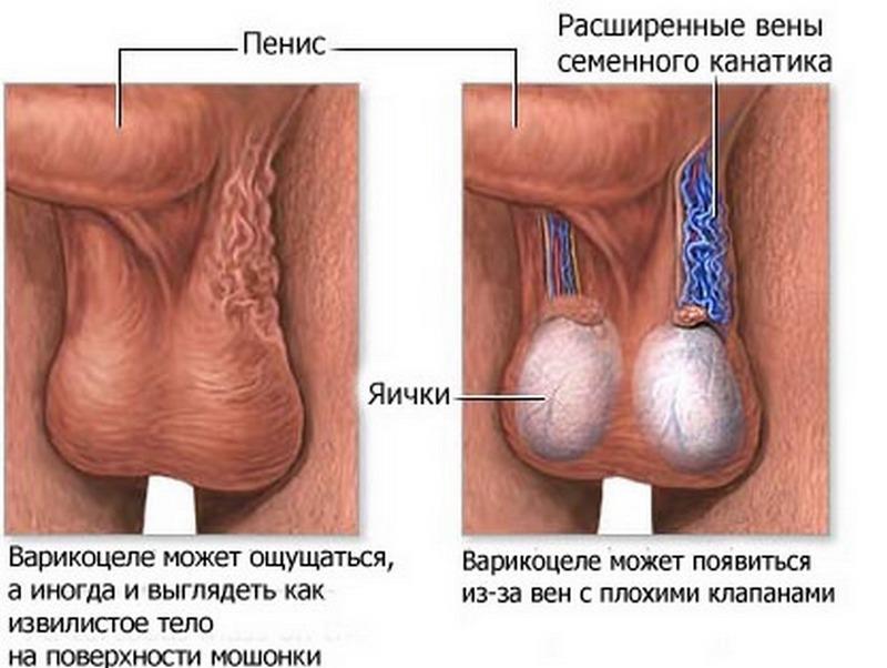 Почему возникает варикоз вен яичка