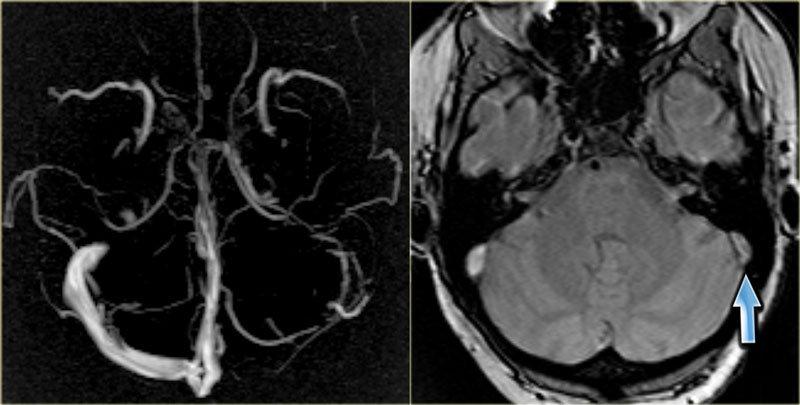 Проявления сигмовидного синус-тромбоза