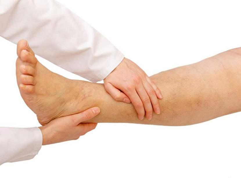 Лечение тромбоза артерий - причины, симптомы и методы лечения