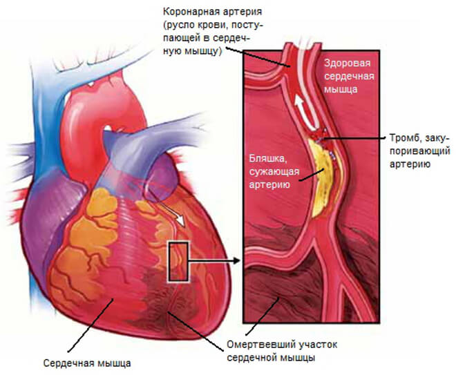 Образование тромба в сердце