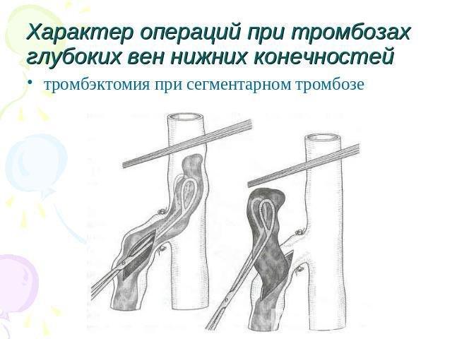 Тромбэктомия при тромбозе