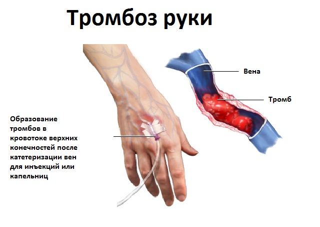 Появление тромбов в кровотоке верхних конечностей