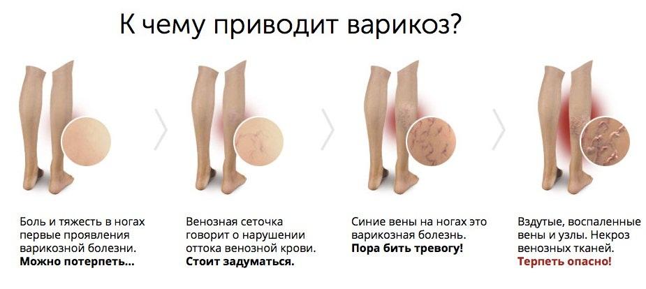 Почему выступают вены на ногах: причины, профилактика и лечение