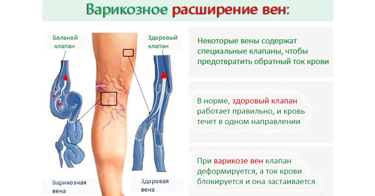 Реабилитационный период после удаления вен на ногах