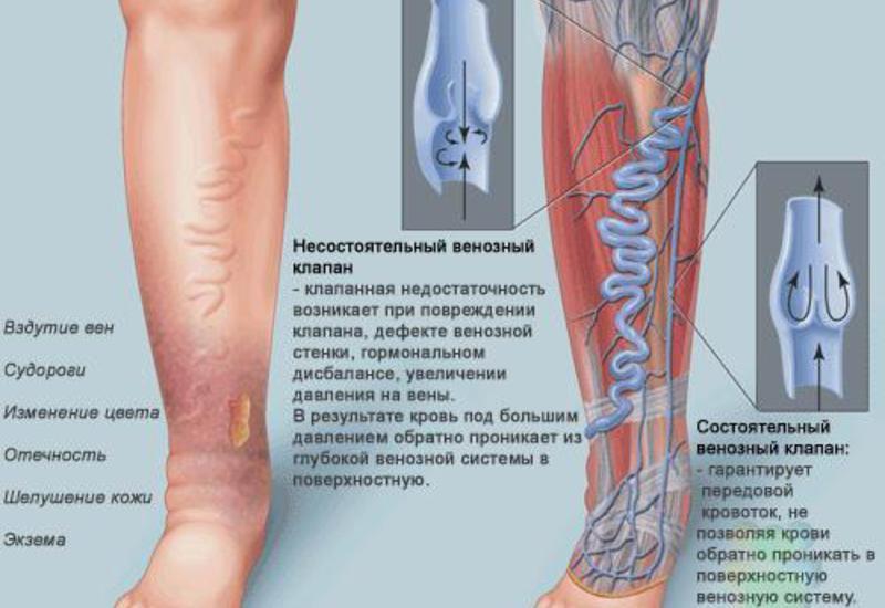 медицина справочник отечность суставов