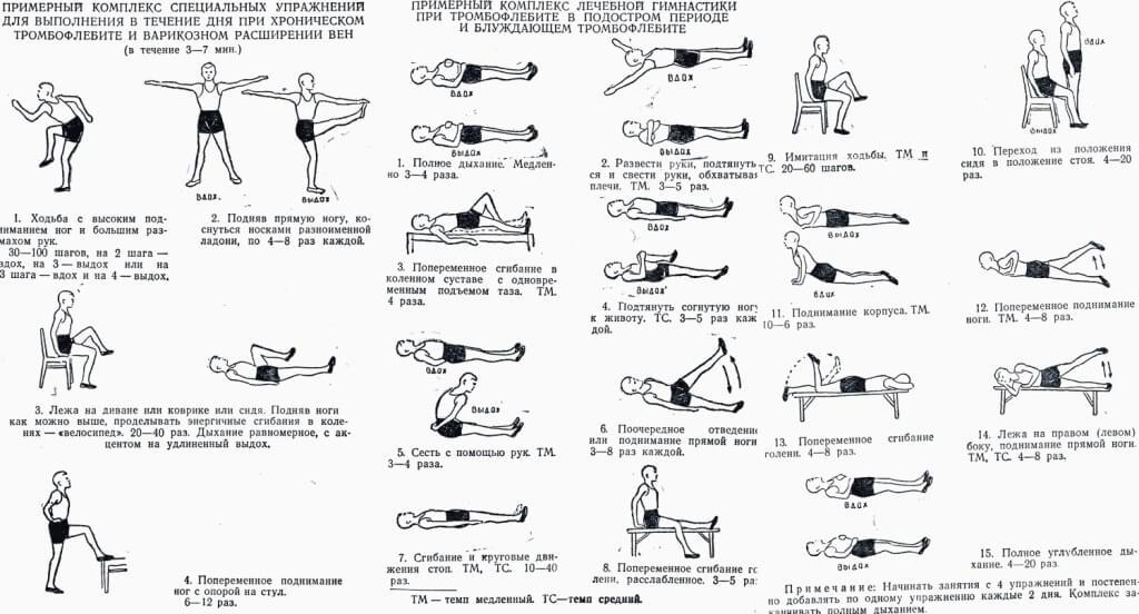 Упражнения и гимнастика варикозе нижних конечностей Упражнения при   Упражнения и гимнастика варикозе нижних конечностей Упражнения при варикозе ног карточка пользователя fazlieva240685 в Яндекс Коллекциях