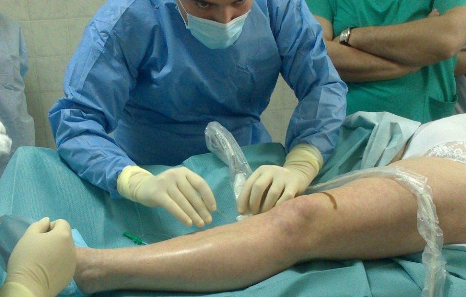 Удаление патологически расширенных подкожных вен