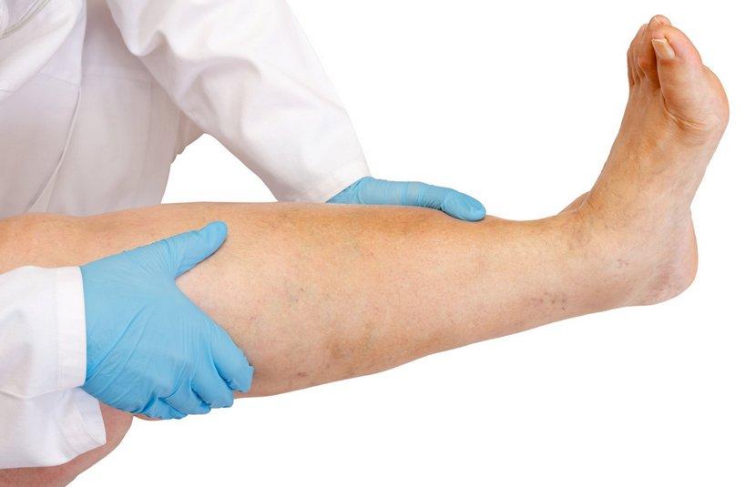 Симптомы лимфедемы нижних конечностей